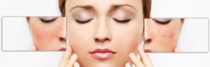 South Face Skin Bournemouth Medical Dermatology Page