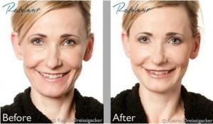 Restylane Soft Restoration