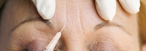 botox bournemouth, botox treatment