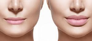 lip enhancement bournemouth