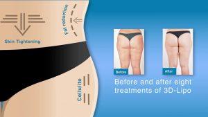 3d Lipomed Ultrasound