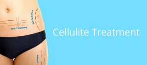 3d lipomed Bournemouth Cellulite