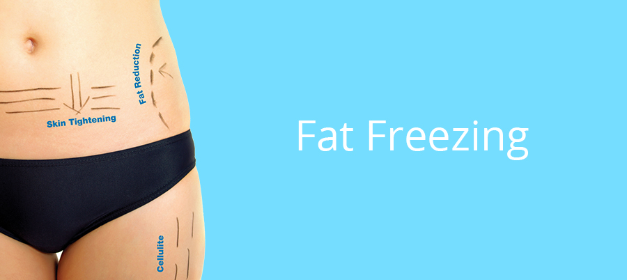 3d lipomed Bournemouth Fat Freezing