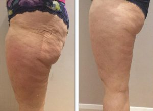 Cellulite Treatment 3d lipomed Bournemouth