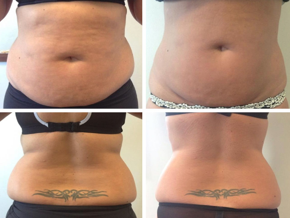 Fat Freezing 3d lipomed Bournemouth