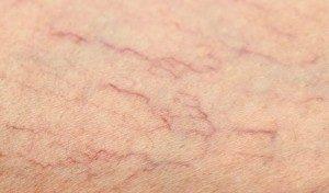 The 3JUVE Treatment Dorset Bournemouth Poole Laser Dermatologist