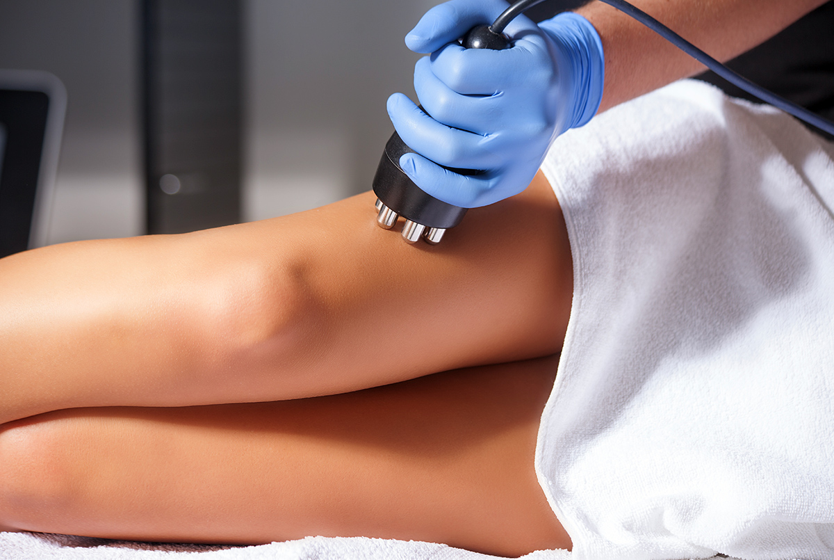 Cellulite Treatment Bournemouth