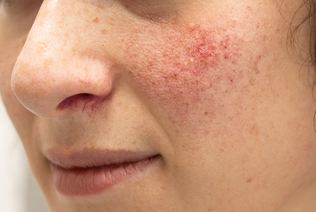Rosacea Treatment Bournemouth