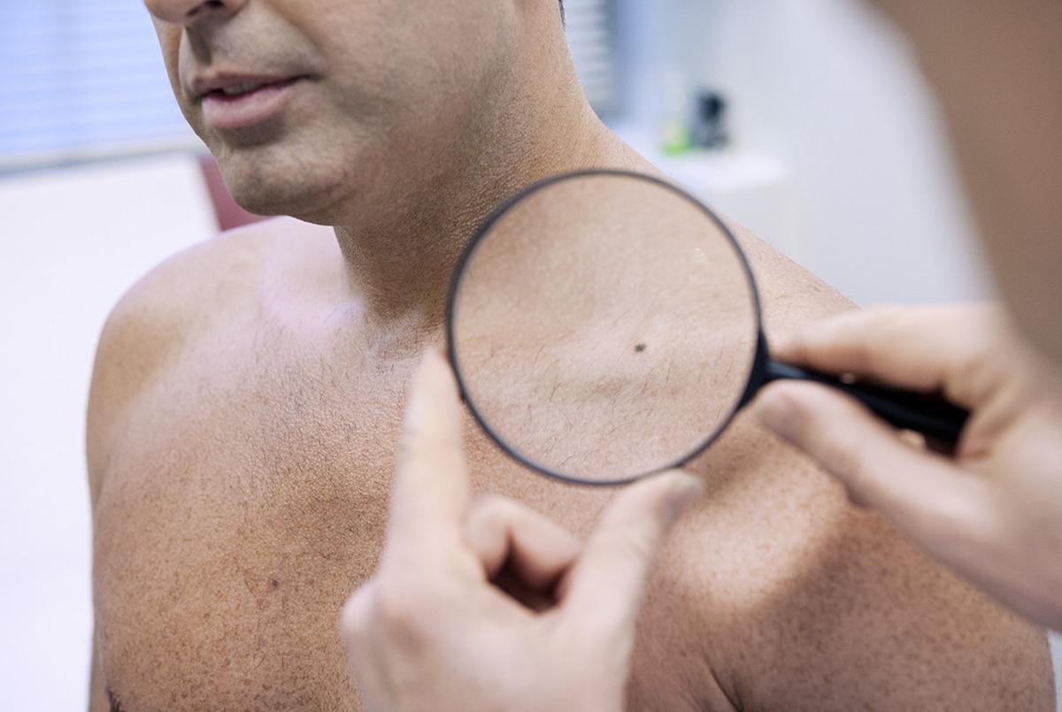 Skin Cancer Screening Bournemouth