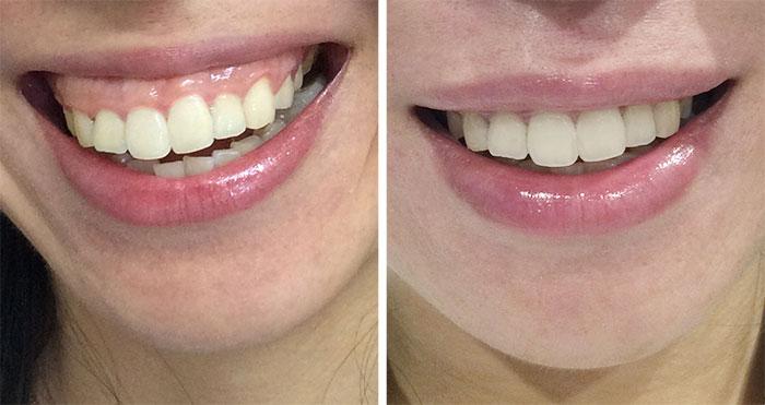 a-gummy-smile
